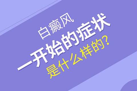 四川白斑较好的医院:白癜风初期有哪些症状