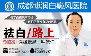 全国知名白癜风医院