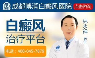 白癜风治疗好方法