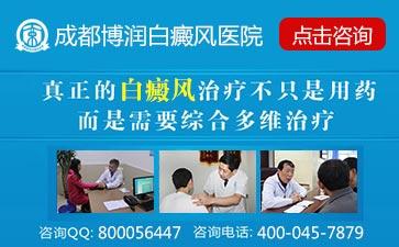 白癜风治疗正规医院